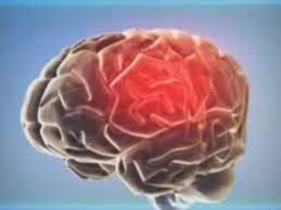 Причины возникновения и методы лечения шизофрении