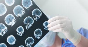 Ученые нашли способ контролировать эпилептические припадки